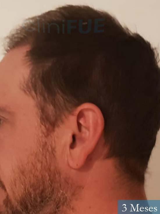 Javier 42 Barcelona trasplante capilar turquia 3 meses 4