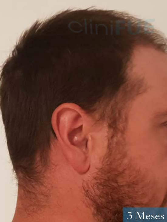 Javier 42 Barcelona trasplante capilar turquia 3 meses 3