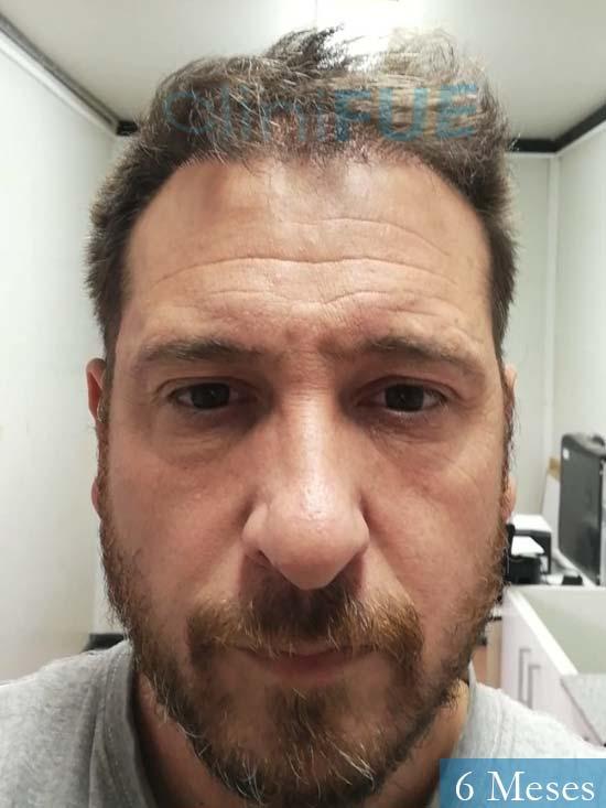 Javier 42 Barcelona trasplante capilar turquia 6 meses 1