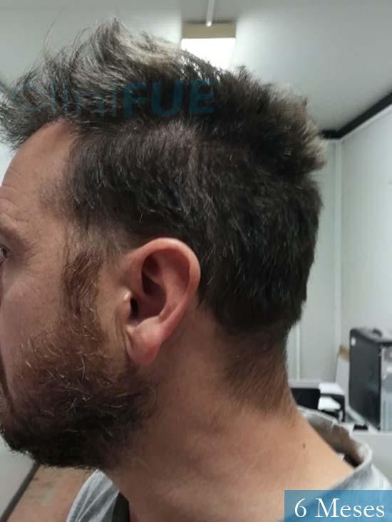 Javier 42 Barcelona trasplante capilar turquia 6 meses 5