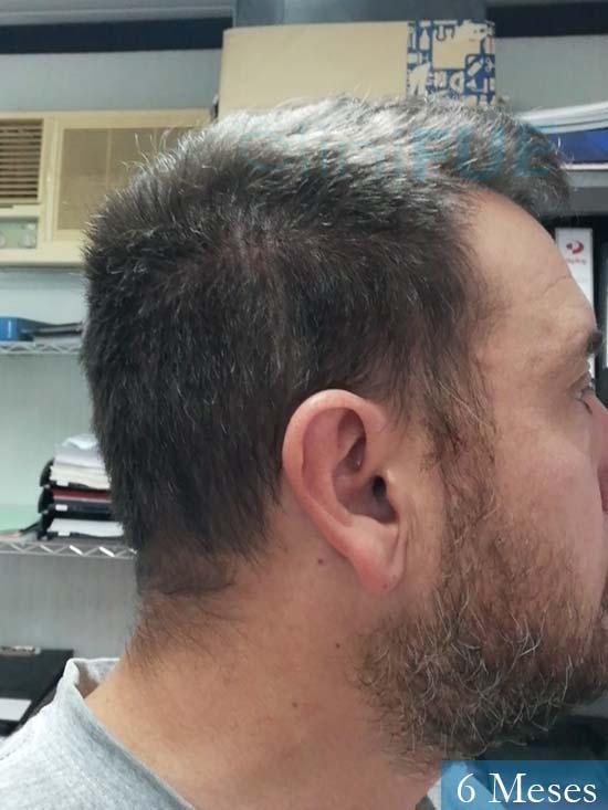 Javier 42 Barcelona trasplante capilar turquia 6 meses 4