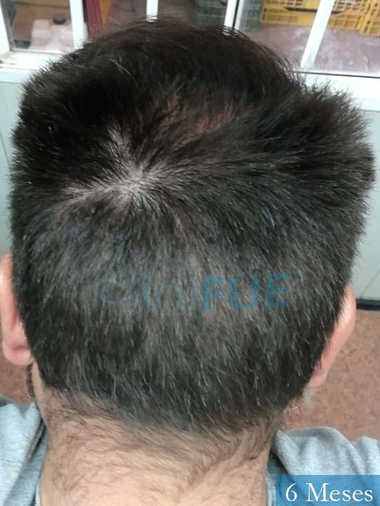 Javier 42 Barcelona trasplante capilar turquia 6 meses 6
