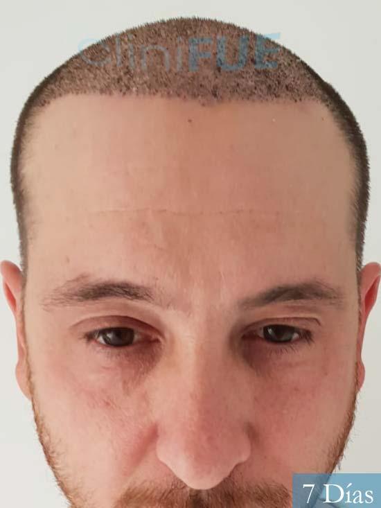 Javier 42 Barcelona trasplante capilar turquia 7 dias
