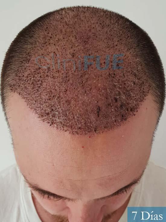 Javier 42 Barcelona trasplante capilar turquia 7 dias 2