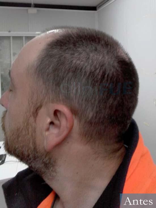 Javier 42 Barcelona trasplante capilar turquia antes 3