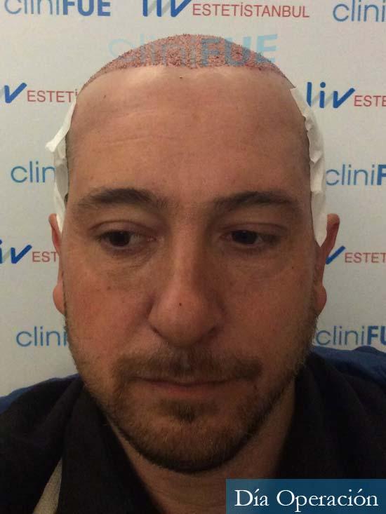 Javier 42 Barcelona trasplante capilar turquia dia operacion