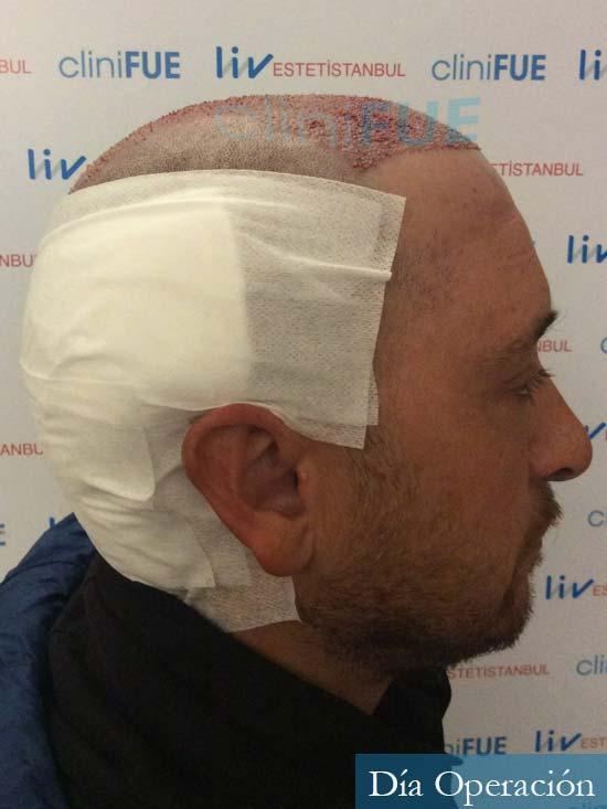 Javier 42 Barcelona trasplante capilar turquia dia operacion 3