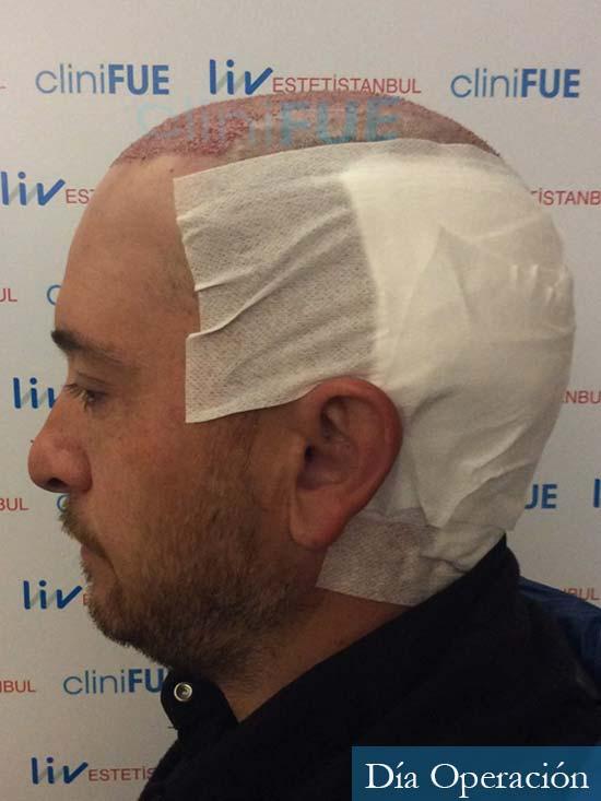 Javier 42 Barcelona trasplante capilar turquia dia operacion 4