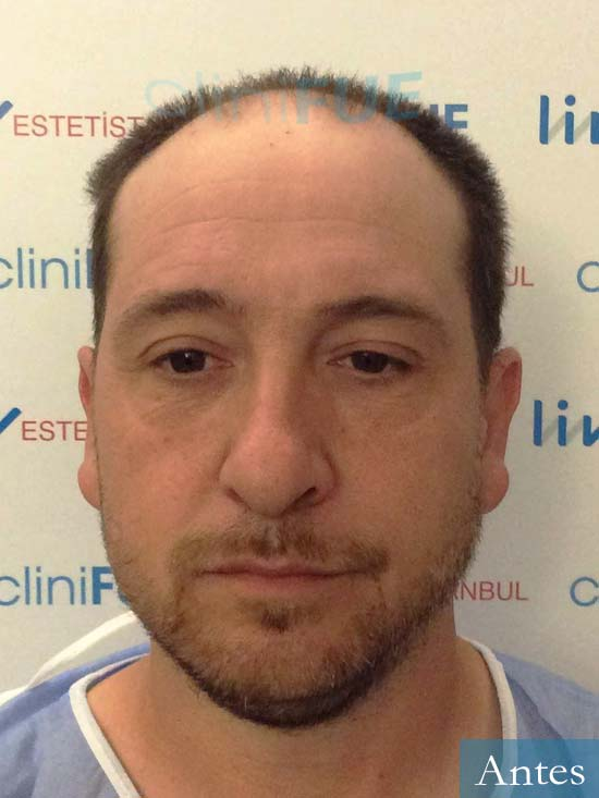 Javier 42 Barcelona trasplante capilar turquia antes