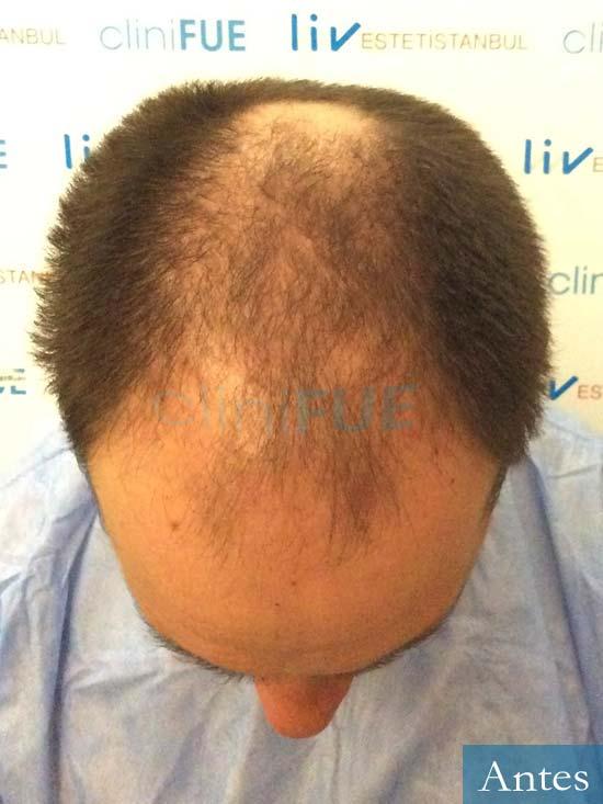 Javier 42 Barcelona trasplante capilar turquia antes 2