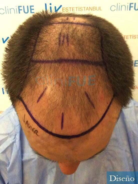 Javier 42 Barcelona trasplante capilar turquia dia operacion diseño 2