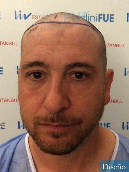 Javier 42 Barcelona trasplante capilar turquia dia operacion diseño 4