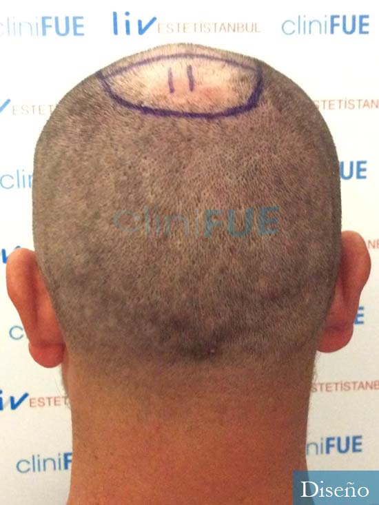 Javier 42 Barcelona trasplante capilar turquia dia operacion diseño 7