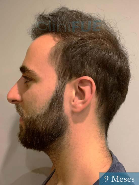 Xabier 23 Pamplona injerto de pelo 9 meses 4