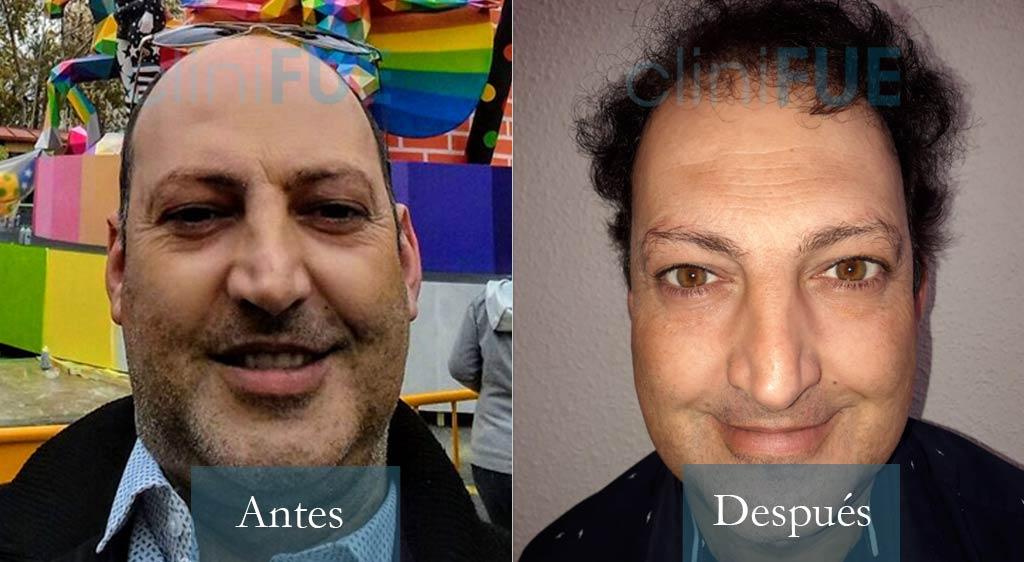 Trasplante capilar de Paco 40 años de Albacete