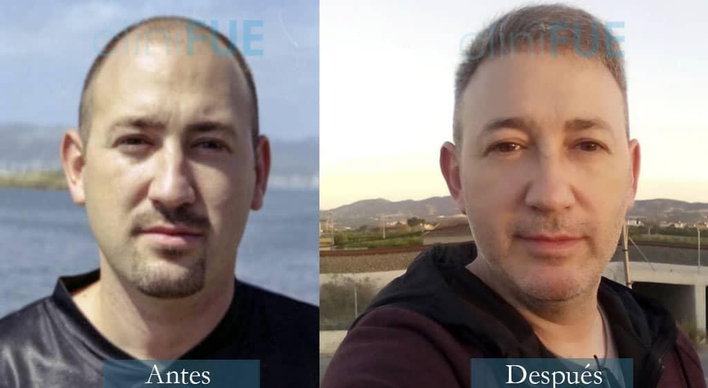 Trasplante capilar de Chema 46 Años de Murcia con cliniFUE