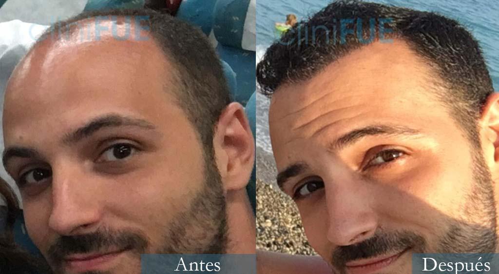 Trasplante capilar de Crhistian 33 Años de Barcelona con cliniFUE
