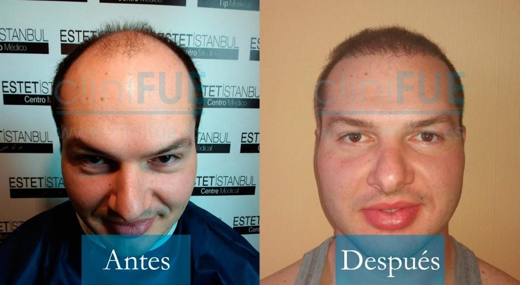 Trasplante capilar de Jose 30 Años de Granada con cliniFUE