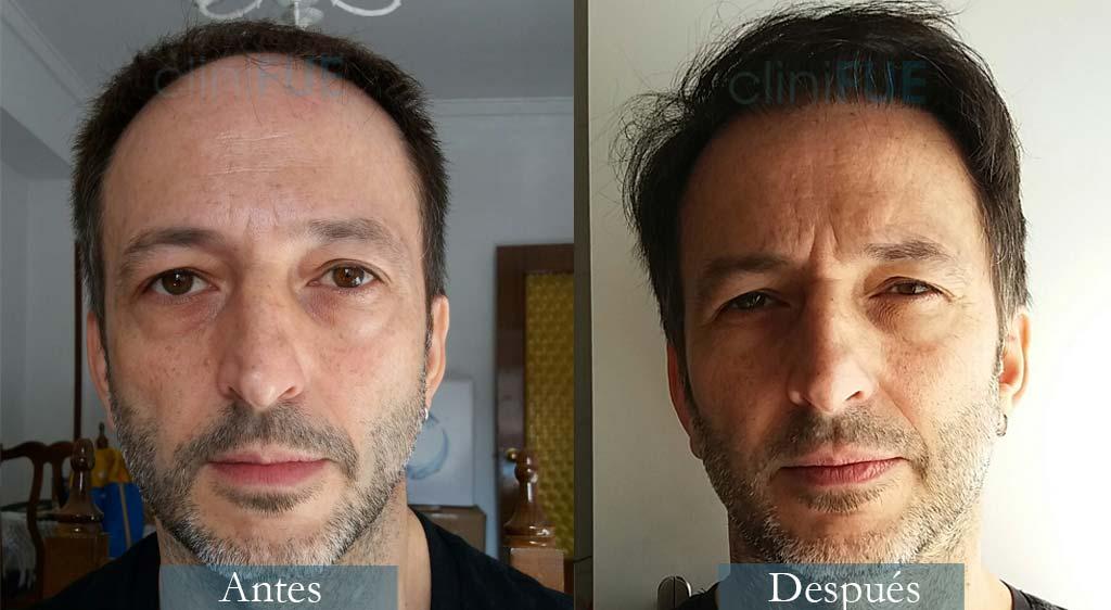 Trasplante capilar de José Luis 49 Años de Madrid con cliniFUE