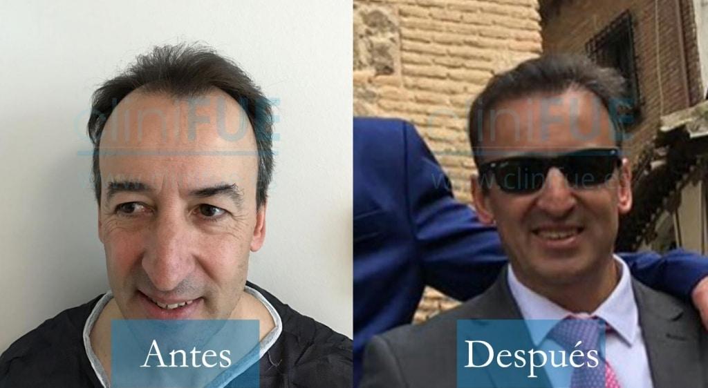 Trasplante capilar de Juan Manuel 48 años Madrid en Turquía de la mano de cliniFUE
