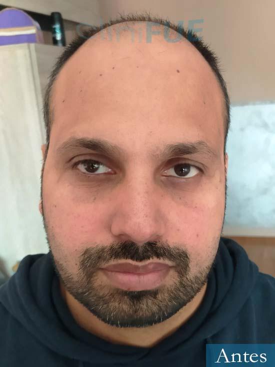 Muhammad 39 Barcelona trasplante capilar turquia antes