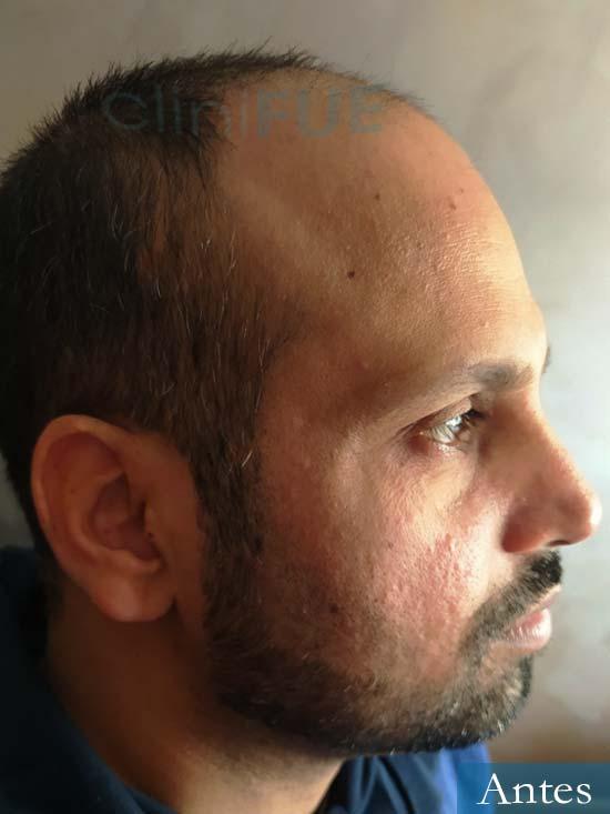 Muhammad 39 Barcelona trasplante capilar turquia antes 3
