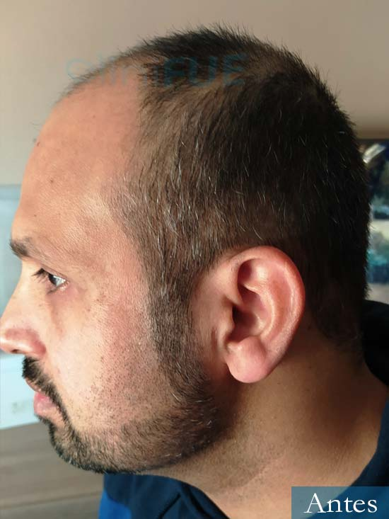 Muhammad 39 Barcelona trasplante capilar turquia antes 4
