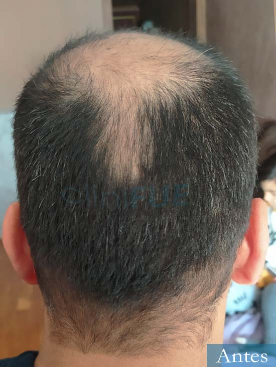 Muhammad 39 Barcelona trasplante capilar turquia antes 5