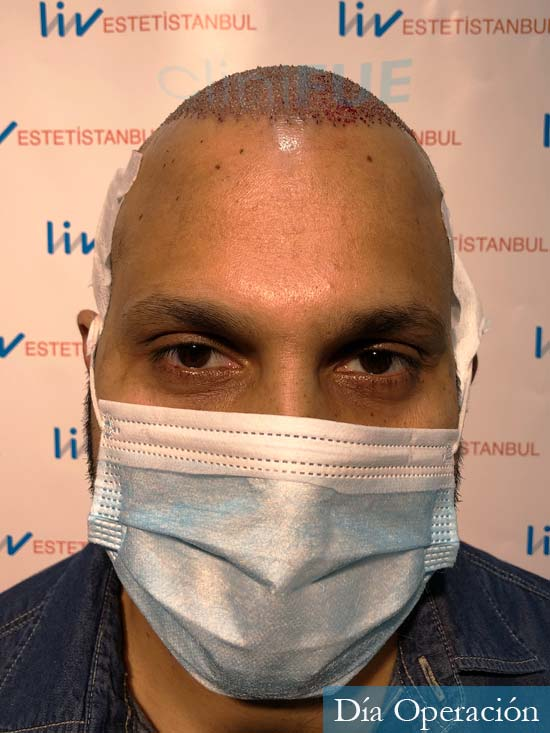 Muhammad 39 Barcelona trasplante capilar turquia dia operacion