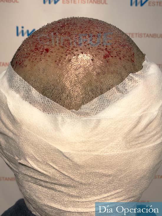 Muhammad 39 Barcelona trasplante capilar turquia dia operacion 5
