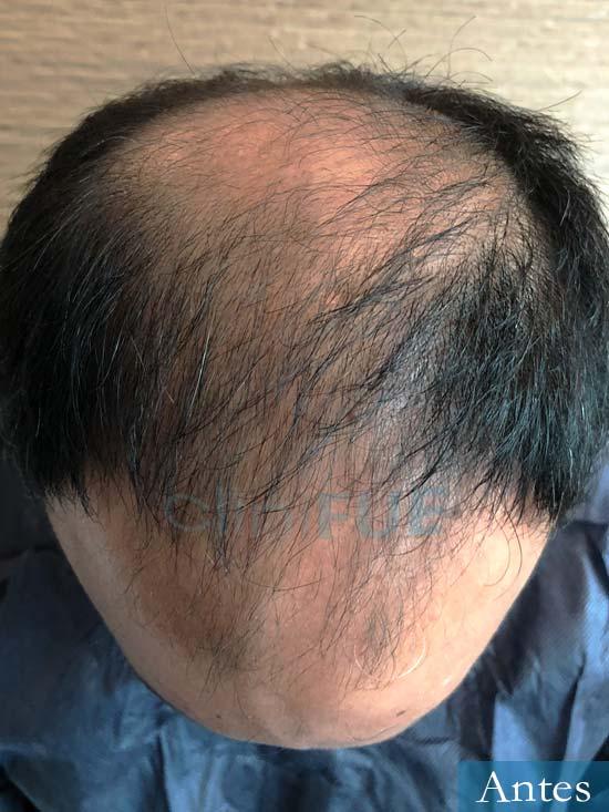 Muhammad 39 Barcelona trasplante capilar turquia antes 2