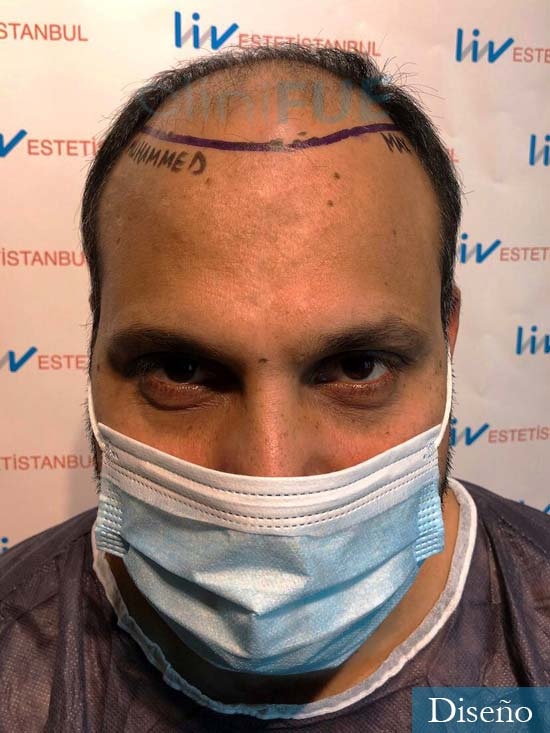 Javier 42 Barcelona trasplante capilar turquia dia operacion diseño