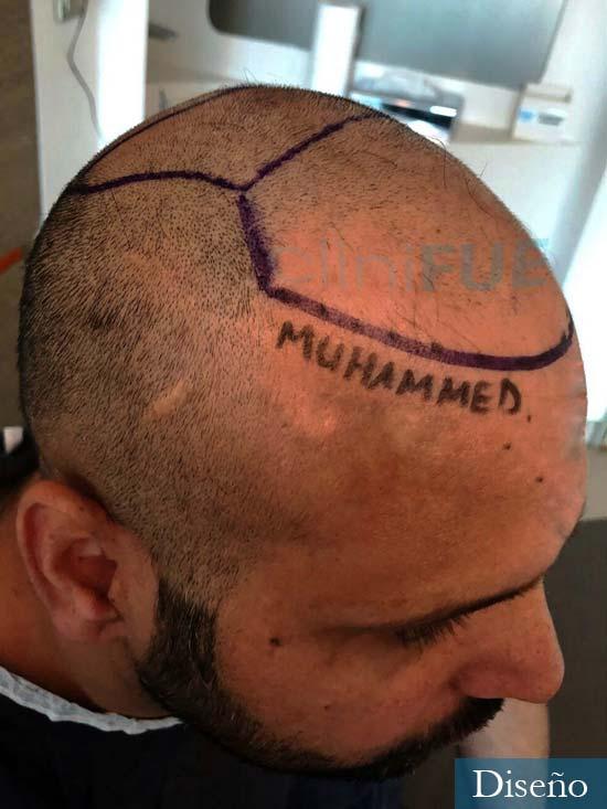 Muhammad 39 Barcelona trasplante capilar turquia antes 6