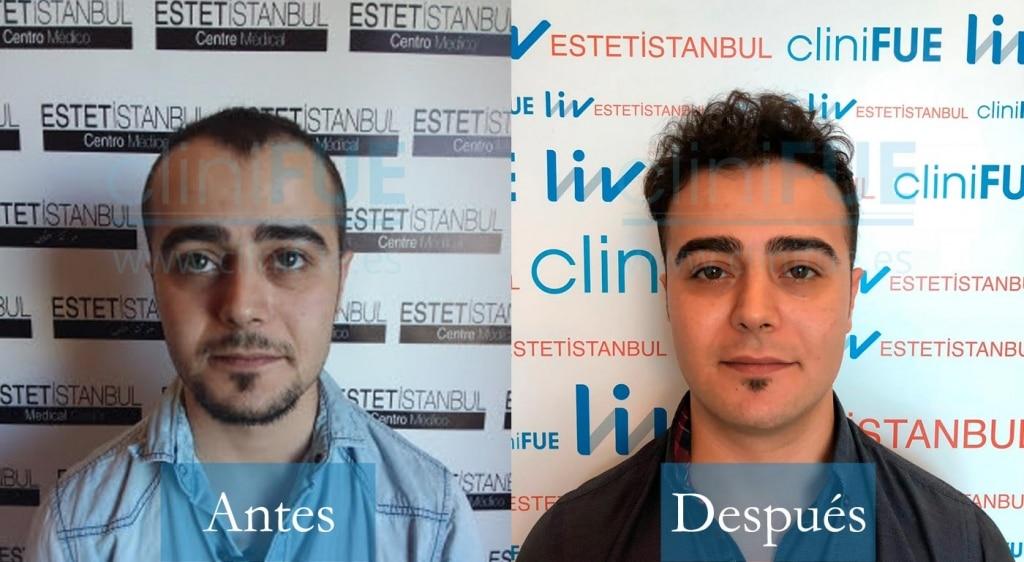 Trasplante capilar de Sinan 29 Años de Estambul con cliniFUE