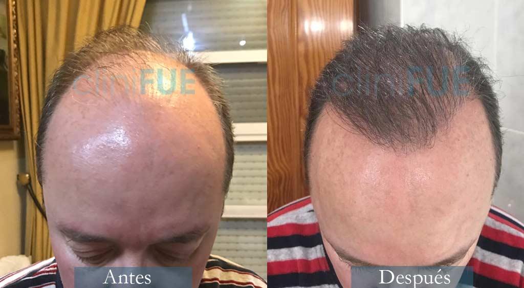 Trasplante capilar de Vicente 54 Años de Valencia con cliniFUE