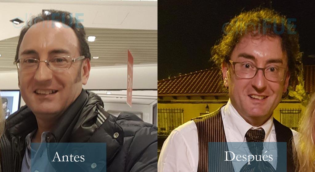 Trasplante capilar de Jose Ignacio 44 Años en Turquía con cliniFUE