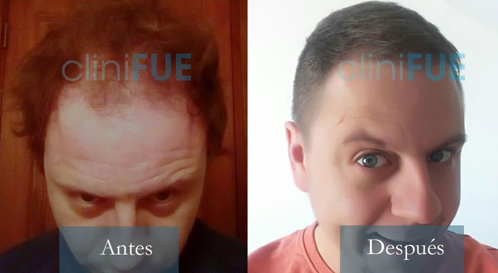 Trasplante capilar de Rudy 37 Años de Teruel con cliniFUE