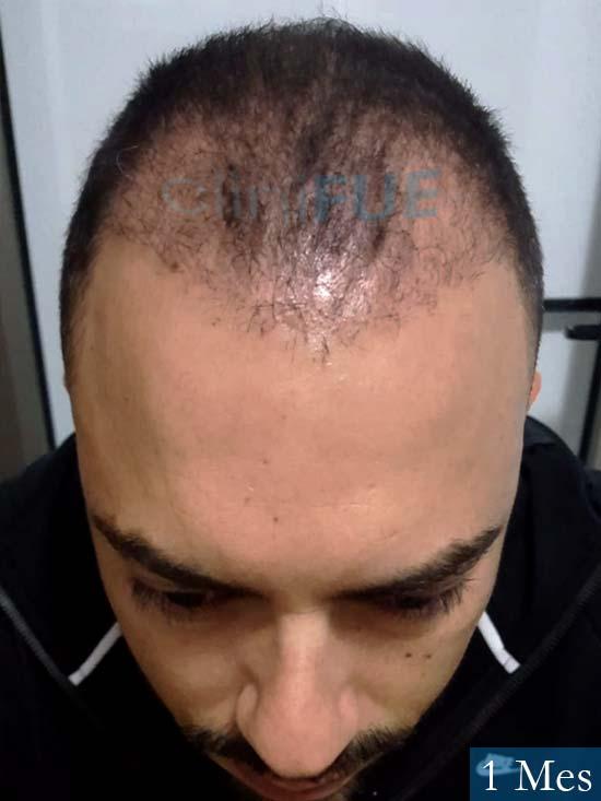 Christian 34 Las Palmas trasplante capilar 1 meses