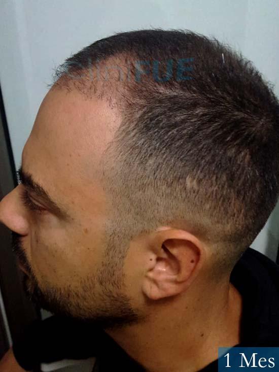 Christian 34 Las Palmas trasplante capilar 1 meses 4