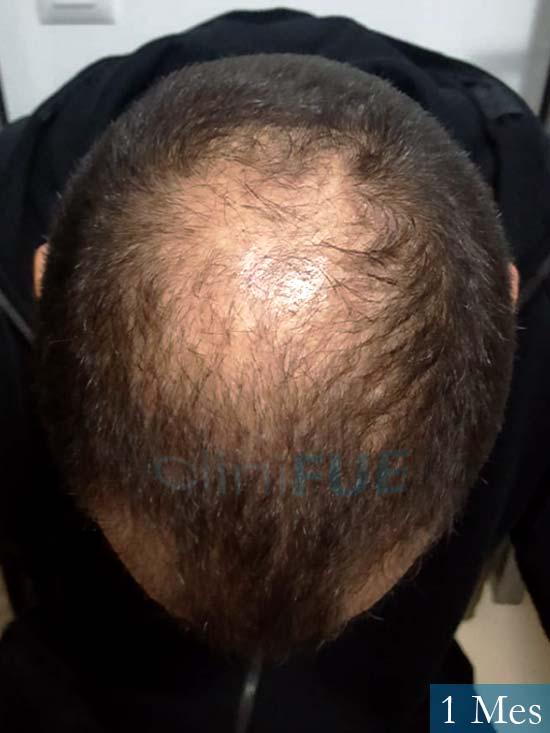 Christian 34 Las Palmas trasplante capilar 1 meses 2