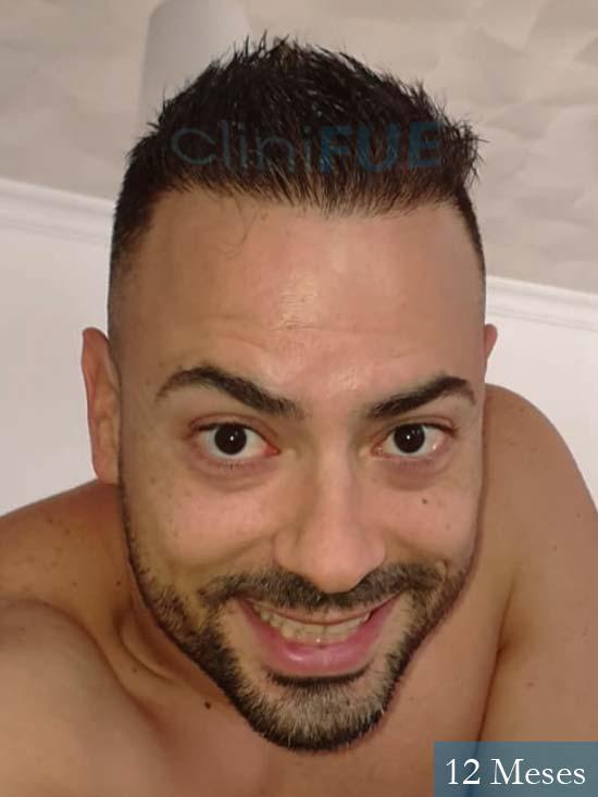 Raul 37 Murcia trasplante capilar 12 meses 1