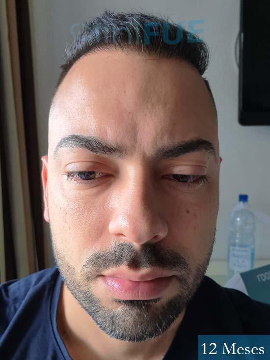 Raul 37 Murcia trasplante capilar 12 meses 2