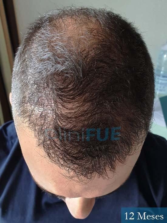 Raul 37 Murcia trasplante capilar 12 meses 3