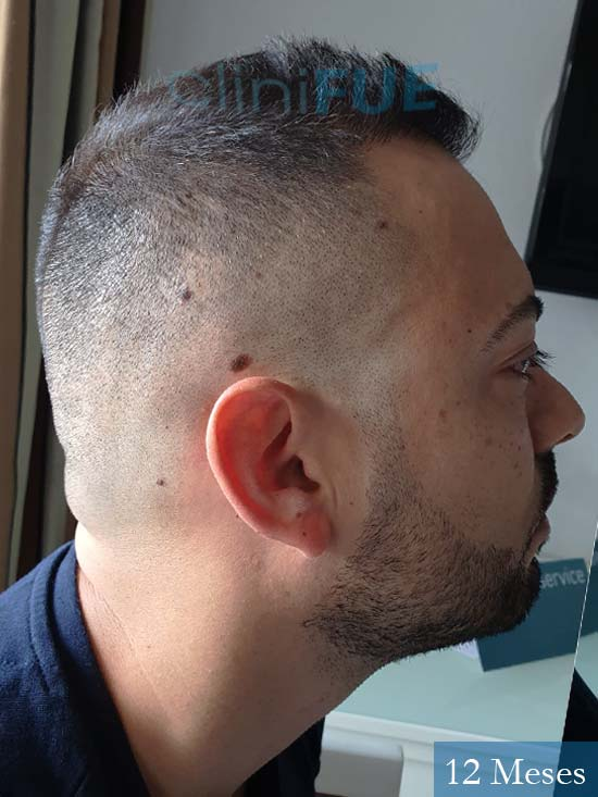 Raul 37 Murcia trasplante capilar 12 meses 4