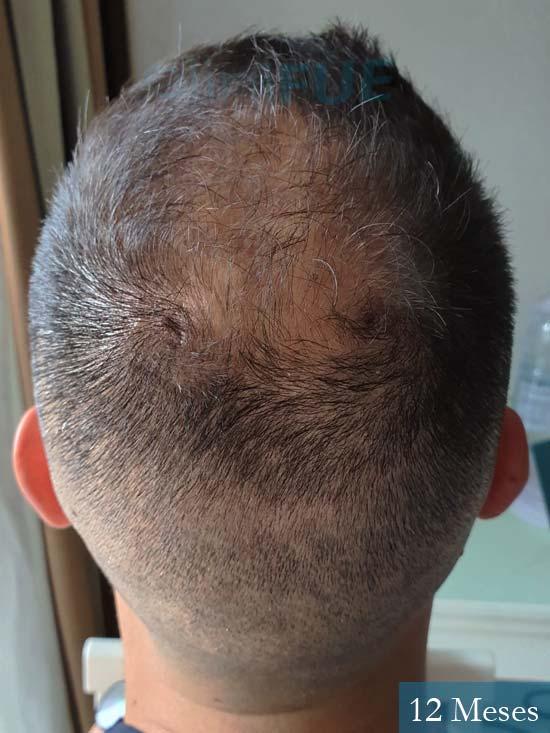 Raul 37 Murcia trasplante capilar 12 meses 5