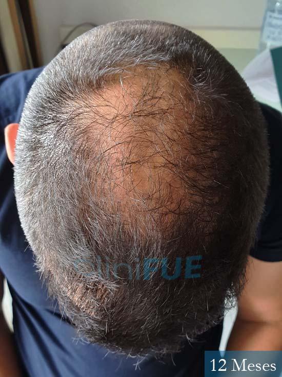 Raul 37 Murcia trasplante capilar 12 meses 6