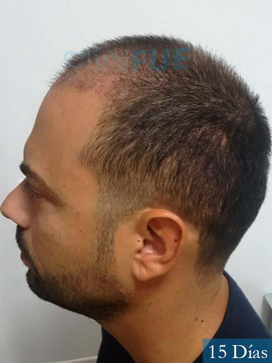 Raul 37 Murcia trasplante capilar 15 dias despues 5