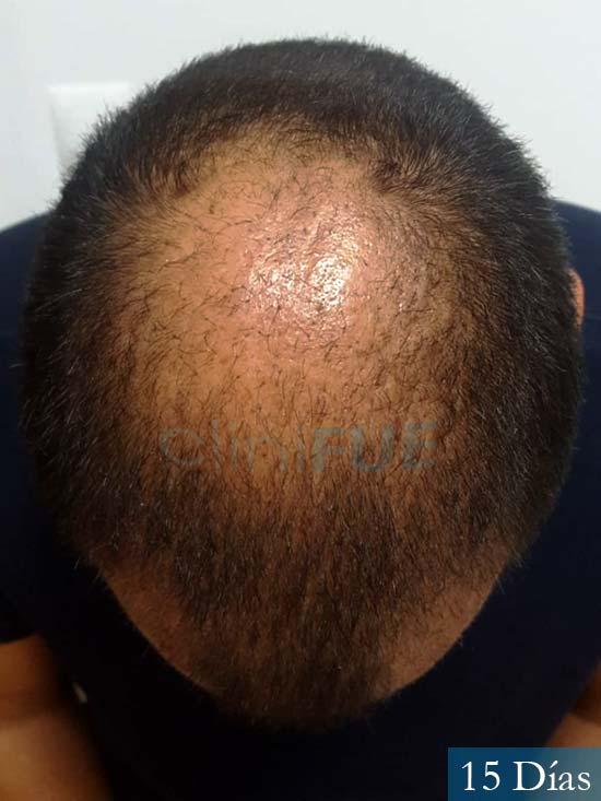 Raul 37 Murcia trasplante capilar 15 dias despues 3