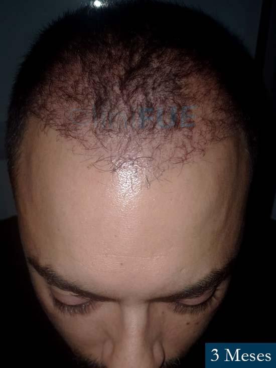 Christian 34 Las Palmas trasplante capilar 3 meses 1