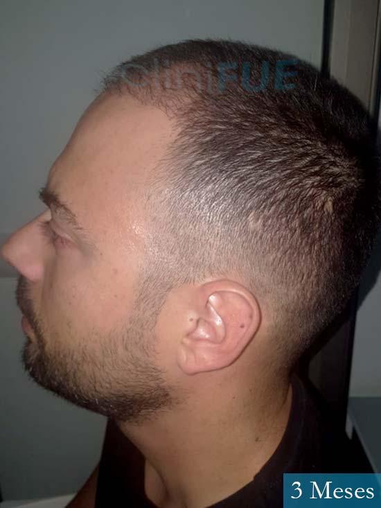 Christian 34 Las Palmas trasplante capilar 3 meses 4